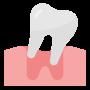 diş çekimi, diş çektirme, bursa diş çekimi, bursa dişçi, bursa diş hekimi